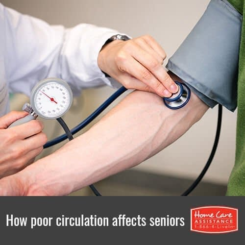 Understanding How Poor Blood Circulation Affects the Elderly in Dayton, OH